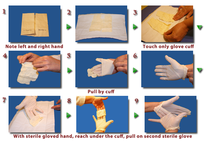 How to Put on Sterile Gloves forecast